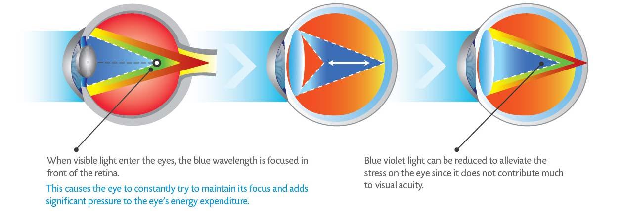HOW DOES BLUE VIOLET LIGHT AFFECT THE EYES